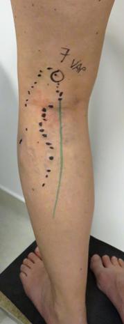 Echomarquage avant chirurgie de varices