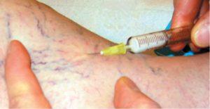 Microsclérose mousse pour varicosités
