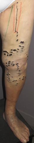 insuffisance veineuse superficielle avec dermite ocre et varices
